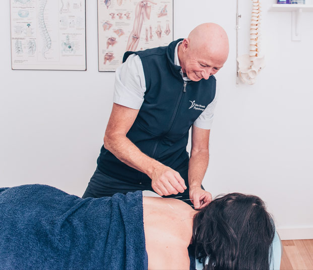 John Meade performing dry needling treatment on patient